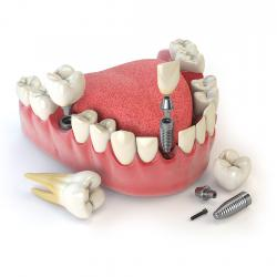 Dental Implant - Special Dent KM Oral and Dental Health Clinic