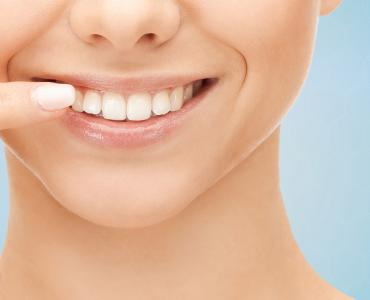 Gum Aesthetics - Special Dent KM Oral and Dental Health Clinic