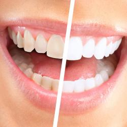 Teeth Whitening - Special Dent KM Oral and Dental Health Clinic